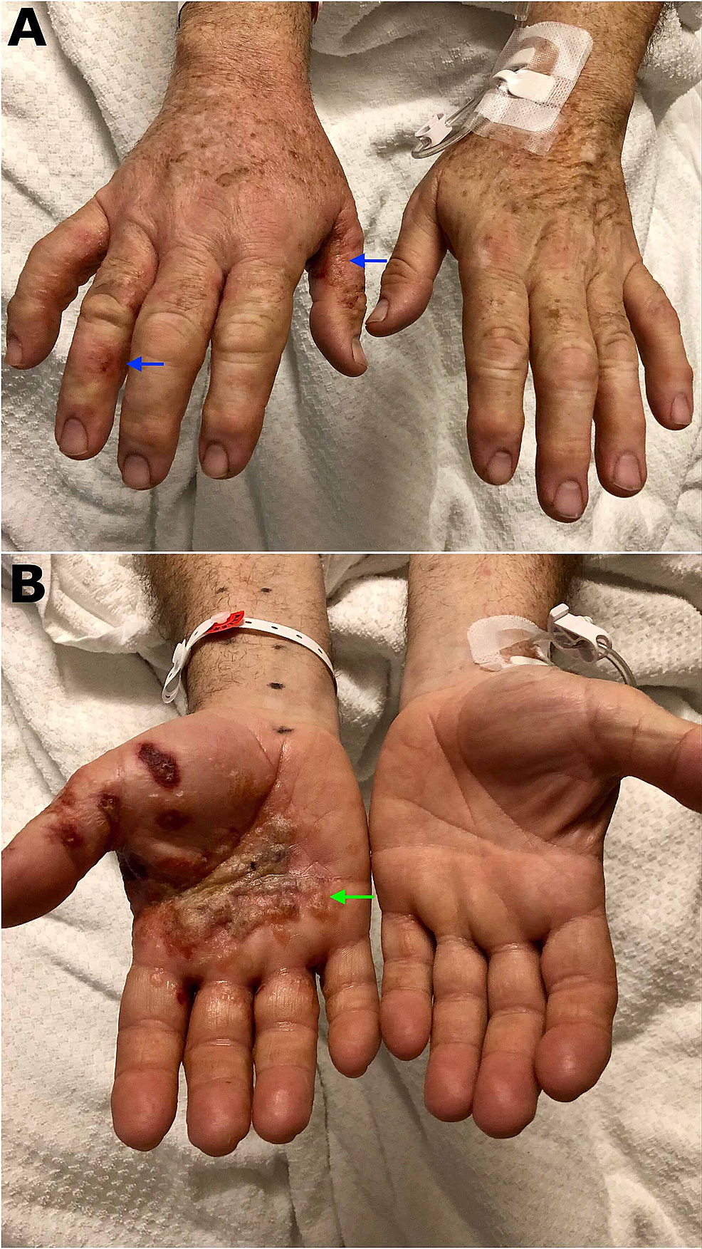 """Vesicular-lesions-located-in-the-lateral-aspect-of-the-fingers-(blue-arrows)-(A).-Palmar-lesions-containing-vesicles-and-bullae-that-conglomerate-getting-the-classic-""""tapioca-pudding""""-appearance-of-dyshidrotic-eczema-(green-arrow)-(B)"""