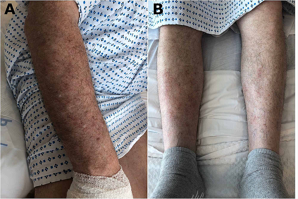 Maculopapular-lesions-with-scratch-marks-located-in-the-right-forearm-(A)-and-lower-extremities-(B)