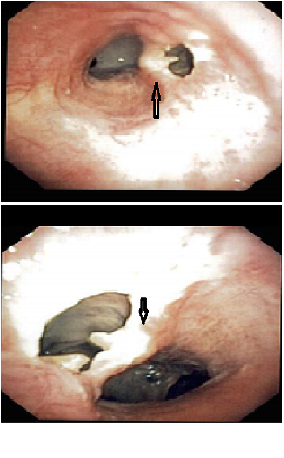 Bronchoscopy-images-showing-the-fistula.