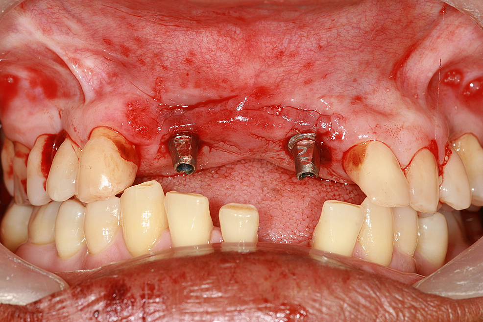 Implant-torqued-in-the-osteotomy-site