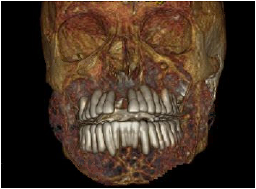 3D-rendering-of-the-computed-tomography-showing-abnormal-appearance-of-the-maxilla,-mandible-and-the-rest-of-facial-bones.
