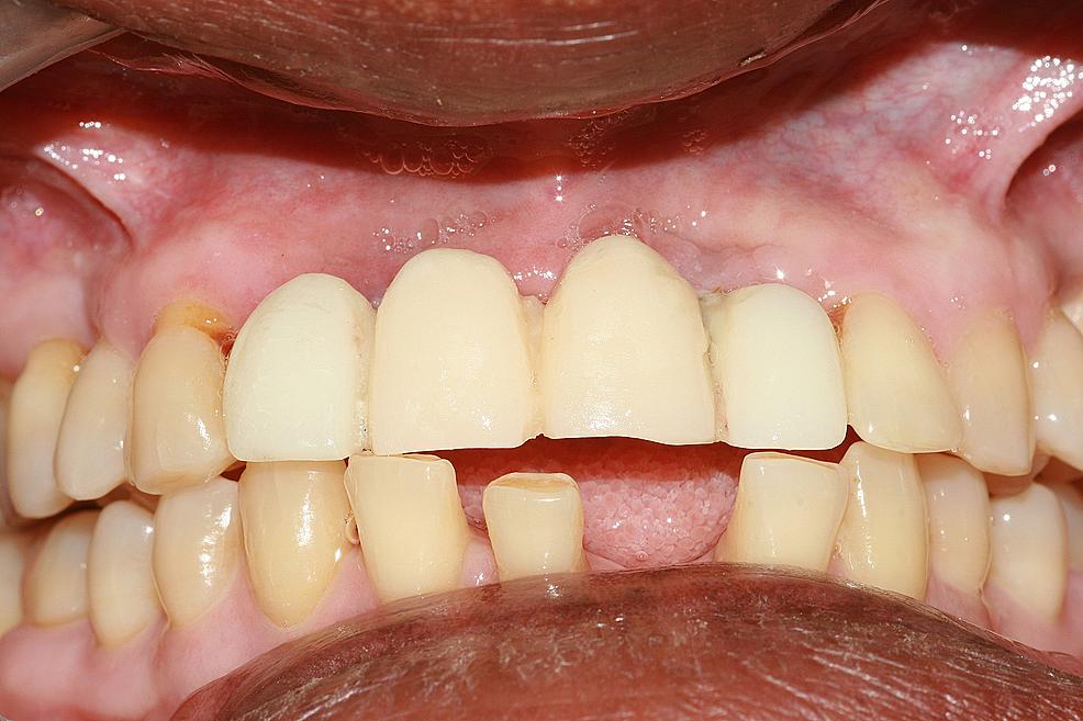 Cementation-of-provisional-intermediate-restoration