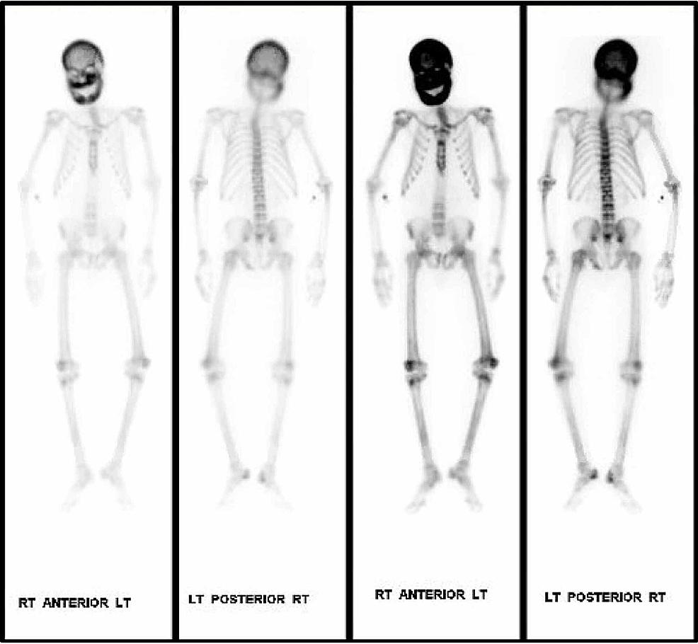 Technetium-99m-methylene-diphosphonate-(MDP)-bone-scan-showing-increased-activity-throughout-the-calvarium,-facial-bones,-primarily-in-the-alveolar-margin,-and-throughout-the-mandible.