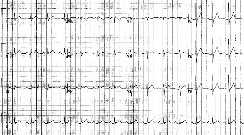 Electrocardiogram-showing-ST-segment-elevation-in-leads-II,-III-and-a-ventricular-fibrillation-(VF)