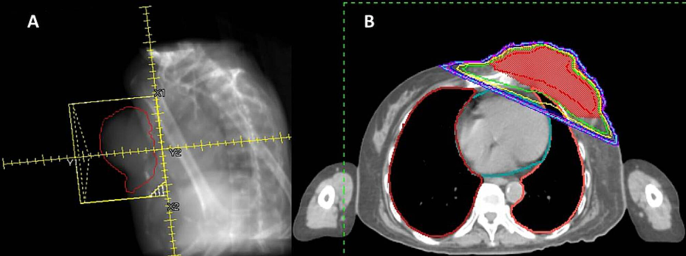 (A)-Beam's-eye-view-(BEV)-digitally-reconstructed-radiograph-(DRR)-of-opposed-tangential-6-megavoltage-(MV)-photon-radiation-fields.-(B)-Representative-cross-sectional-computed-tomography-(CT)-planning-image-showing-radiation-isodose-coverage-of-the-tumor.
