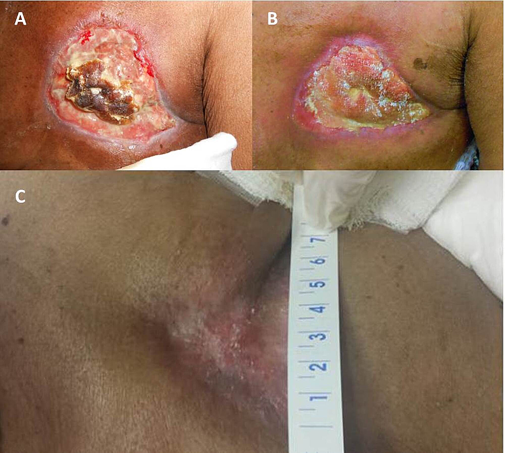 Appearance-of-the-left-chest-wall-(A)-three-weeks,-(B)-nine-weeks,-and-(C)-13-months-following-the-completion-of-concurrent-chemoradiation-(CRT).