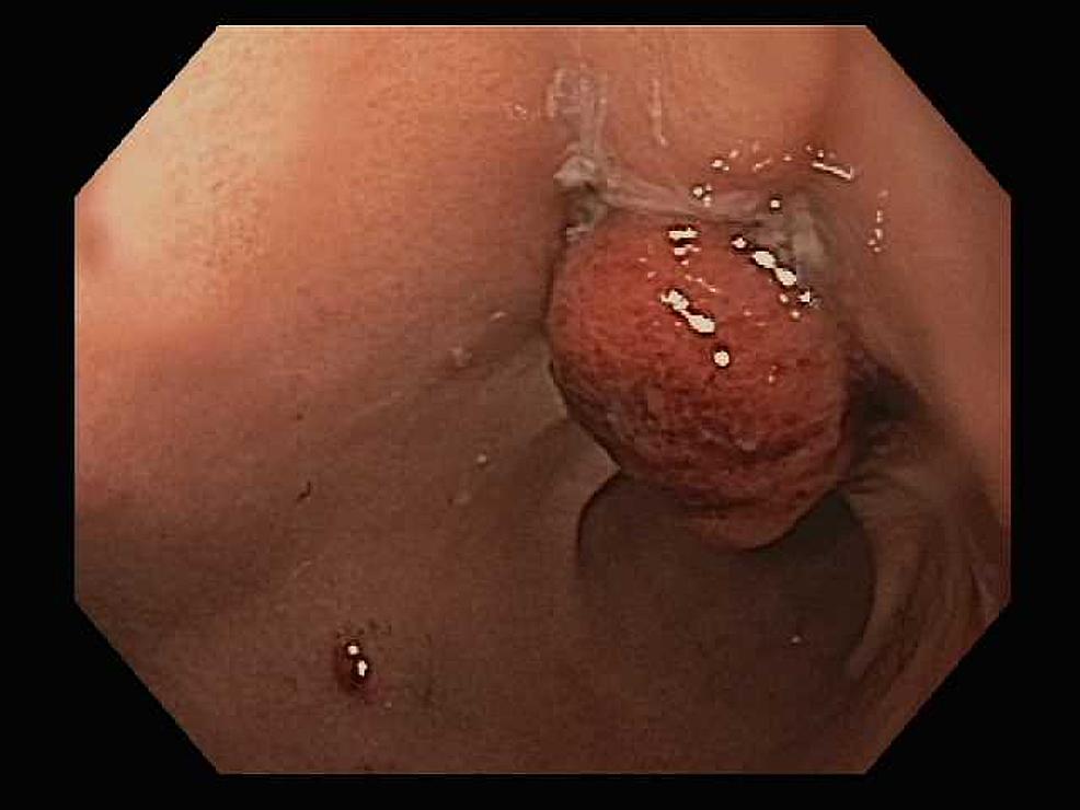 Endoscopic-image-of-successful-OTSC-closure-of-perforation-site