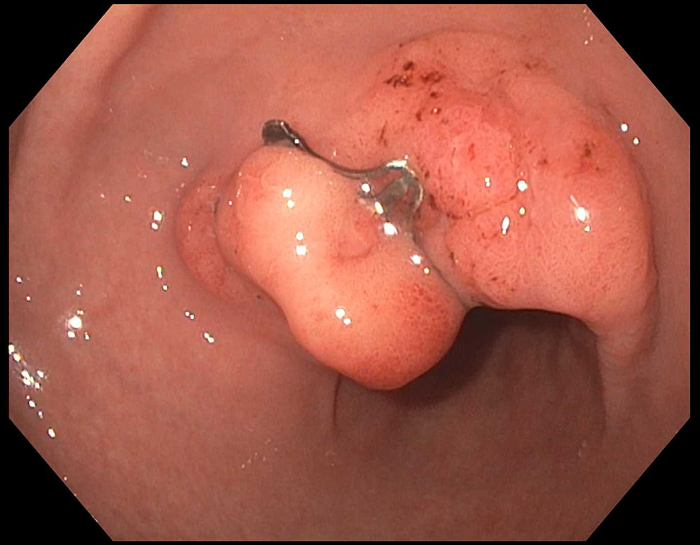 Endoscopic-image-of-healed-full-thickness-defect-with-intact-Padlock-clip-two-years-later