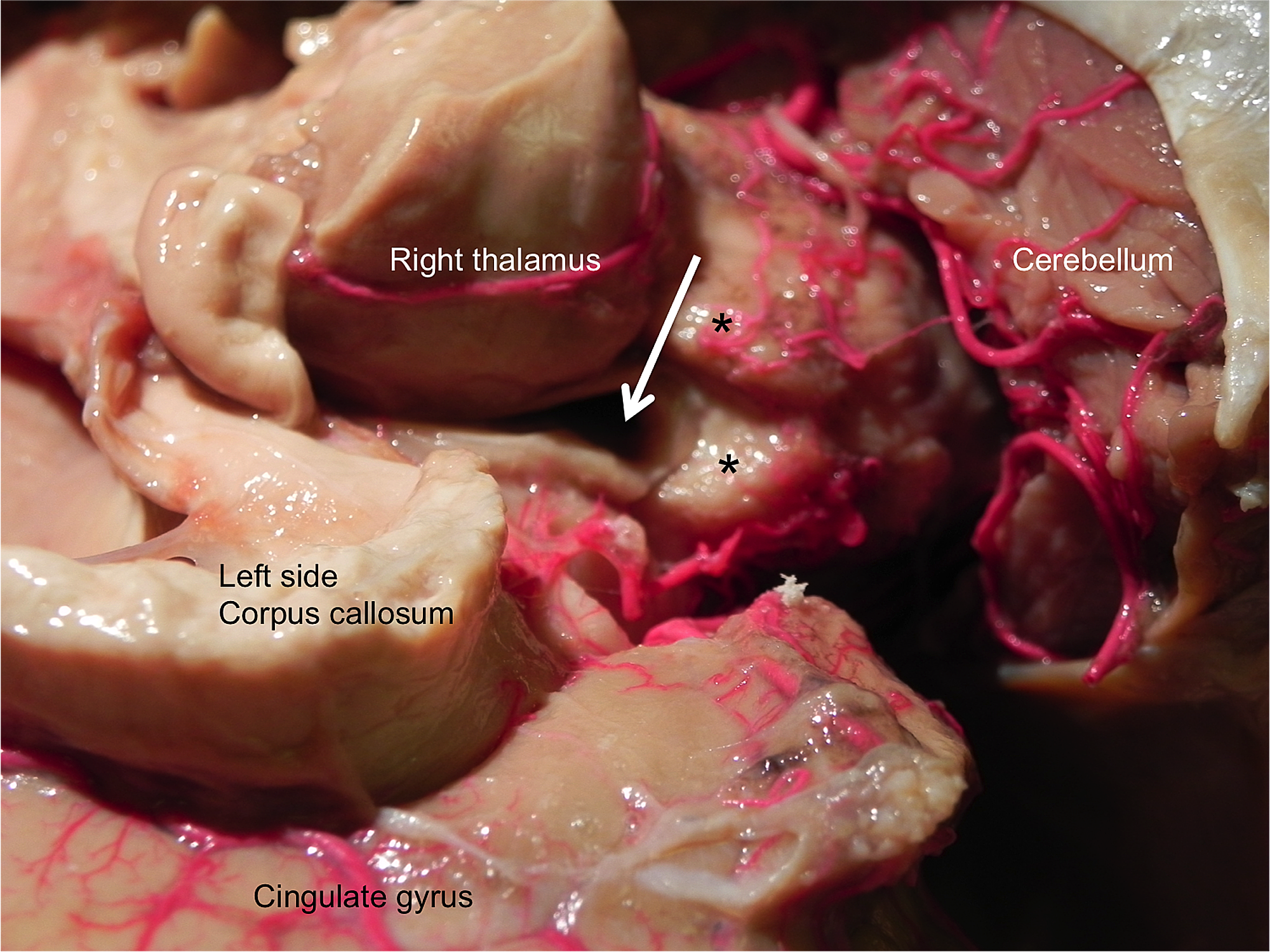 Cureus Pineal Gland Agenesis Review And Case Illustration