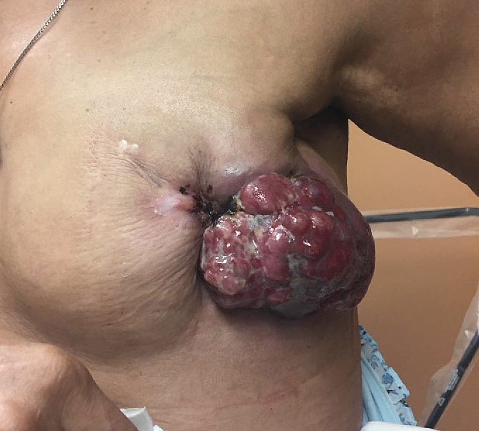 Pre-treatment-left-breast-mass