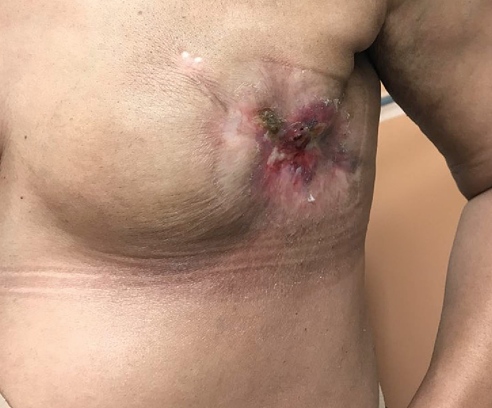 Six-month-post-treatment-left-breast-mass