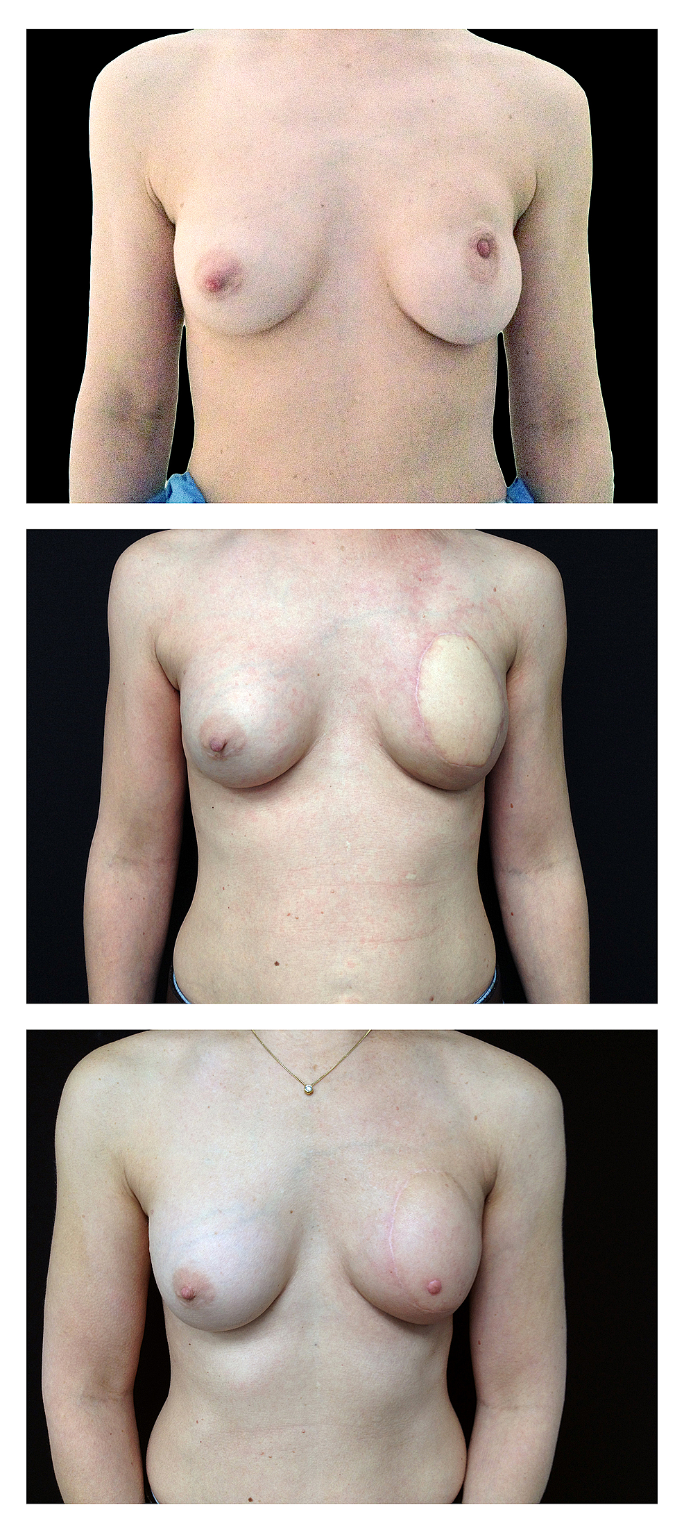Representative-images-of-immediate-breast-reconstruction-in-the-setting-of-postmastectomy-radiation,-published-with-permission-from-the-patient.-Preoperative-(top),-post-autologous-latissimus-dorsi-flap-reconstruction-with-addition-of-prosthesis-(middle),-post-nipple-reconstruction-(bottom)