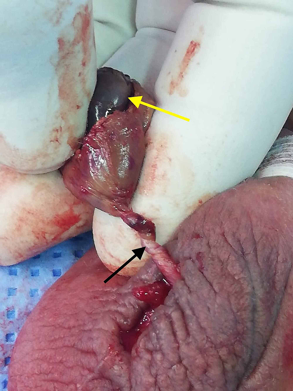 A-delineation-of-the-gangrenous-testis-(yellow-arrow)-due-to-testicular-torsion-with-multiple-twists-of-the-spermatic-cord-(black-arrow).