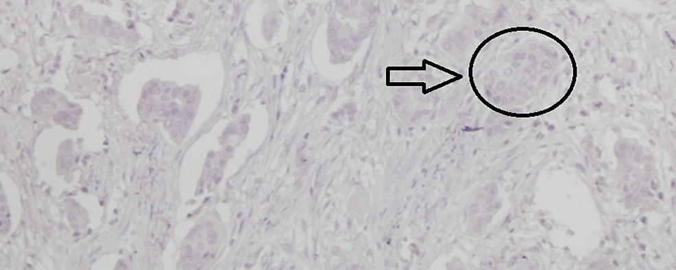 Immunohistochemical-examination-of-the-tumor-showing-negativity-for-progesterone-receptors-(x200)