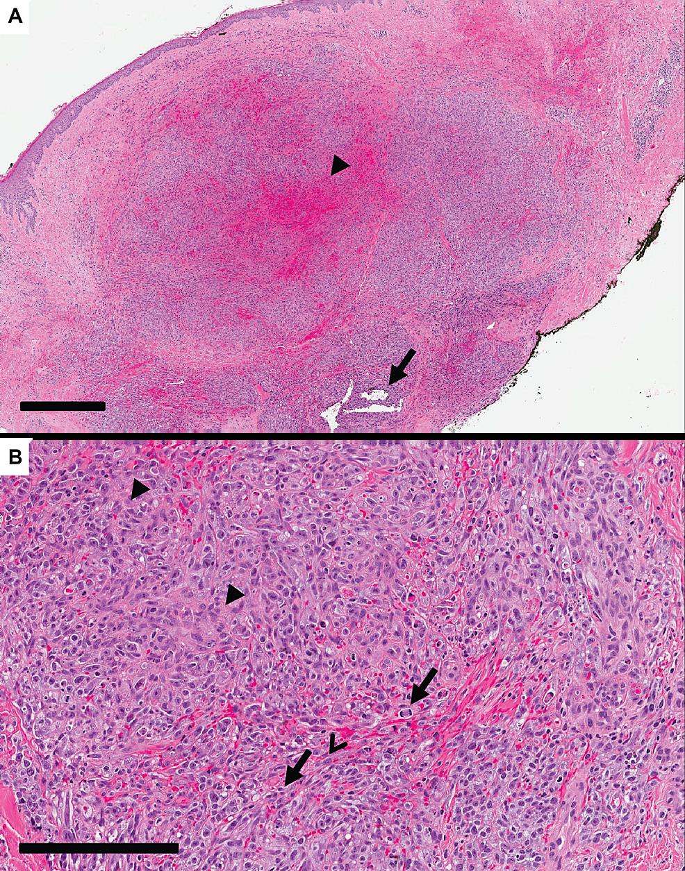 Biopsy-micrographs