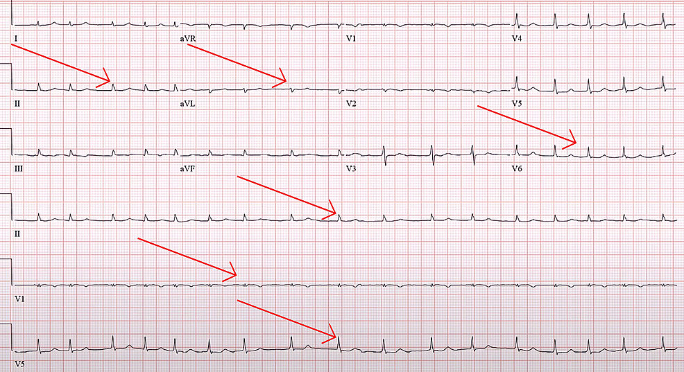 Arrows-showing-low-voltage-ECG.