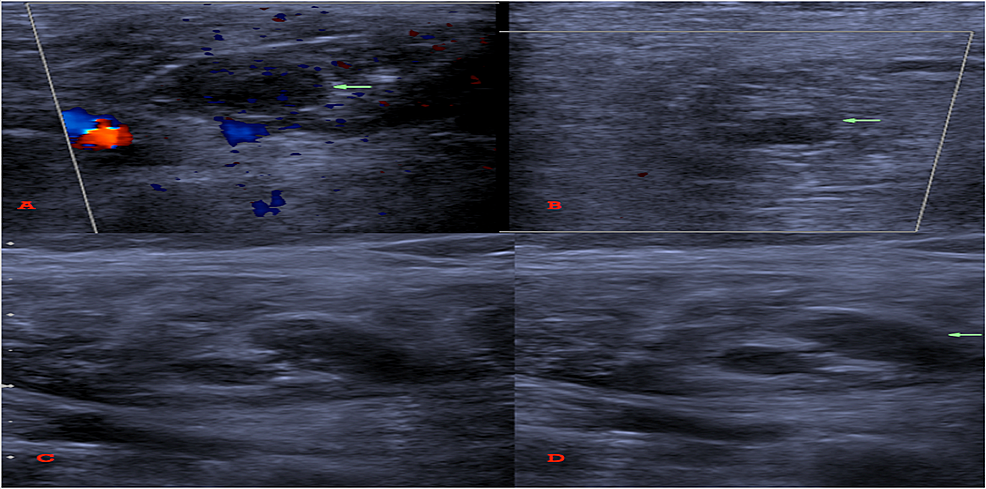 Lower-extremity-venous-duplex-showed--(A)-Right-and-(B)-left-intramuscular-vein-thrombosis.-(C)-Gastrocnemius-vein-without-and-(D)-with-compression-showing-non-compressible-vein-indicative-of-thrombosis.