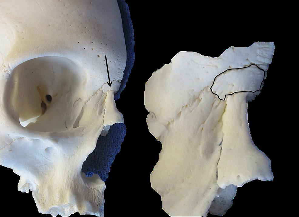 Skull-specimen