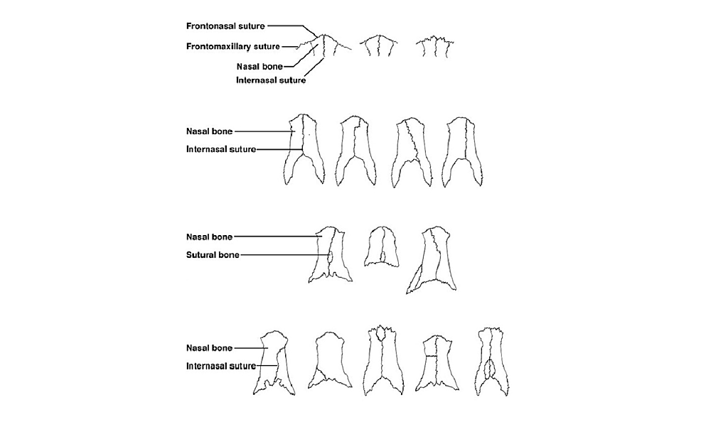 Schematic-drawing-of-variants-of-the-sutures-and-sutural-bones-previously-described-in-the-region-of-the-nasal-bones.