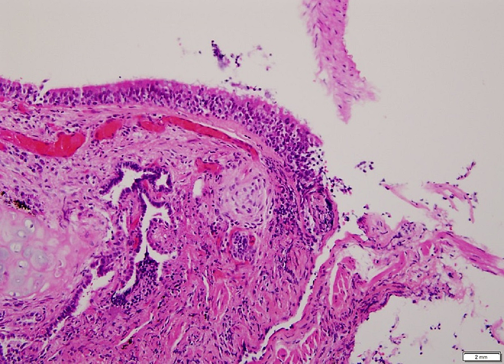 Transbronchial-biopsy-demonstrating-a-poorly-formed,-noncaseating-granuloma