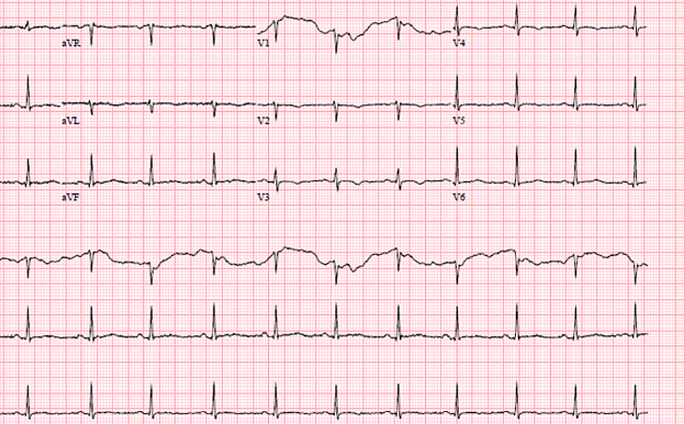 EKG-showing-normal-sinus-rhythm-with-ventricular-rate-77bpm-and-normal-QT/QTc-interval-388/439-ms
