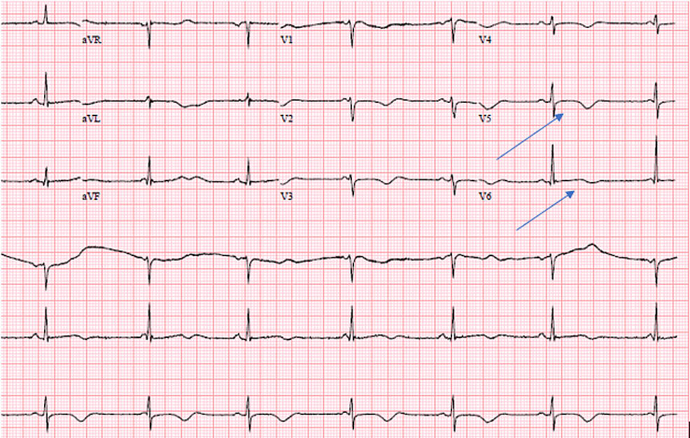 EKG-on-the-third-day-of-remdesivir-treatment.-Marked-sinus-bradycardia-with-ventricular-rate-of-44-bpm,-nonspecific-T-wave-abnormality,-and-prolonged-QT/QTc-interval-628/555-ms