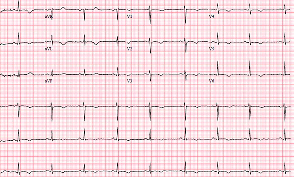 EKG-two-days-post-remdesivir-discontinuation-showing-sinus-rhythm,-with-ventricular-rate-of-64-bpm,-and-normalizing-QT/QTc-of-448/448-ms