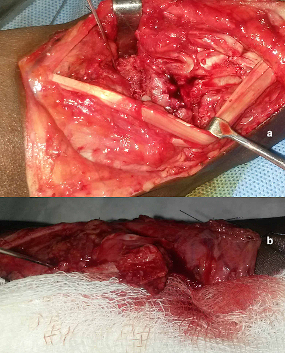 Intraoperative-pictures