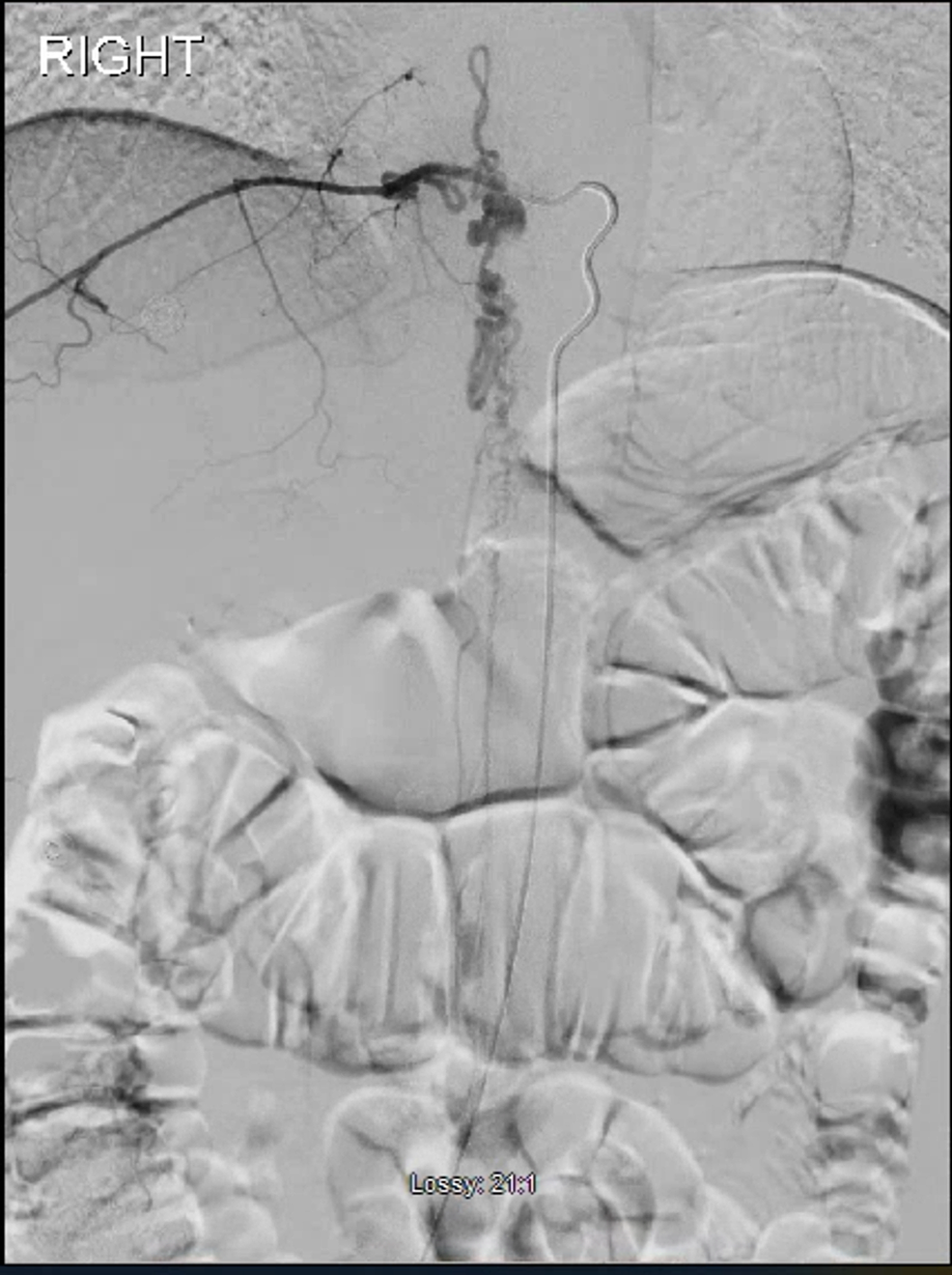 Spinal-digital-subtraction-angiogram-showing-the-AVM-with-the-nidus-at-the-right-pedicle-of-T9.