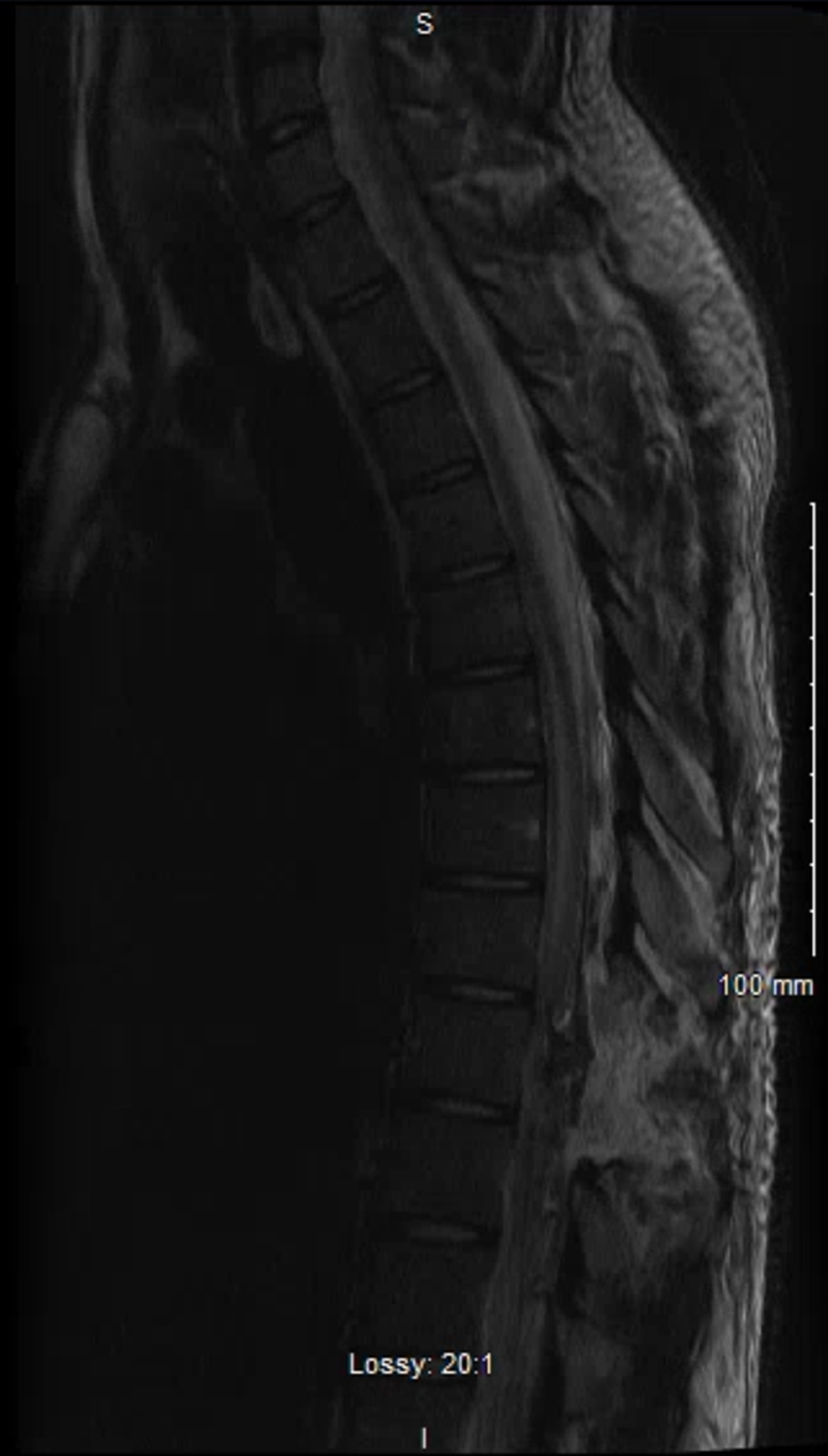 Postoperative-MRI-with-and-without-contrast,-T2-weighted.