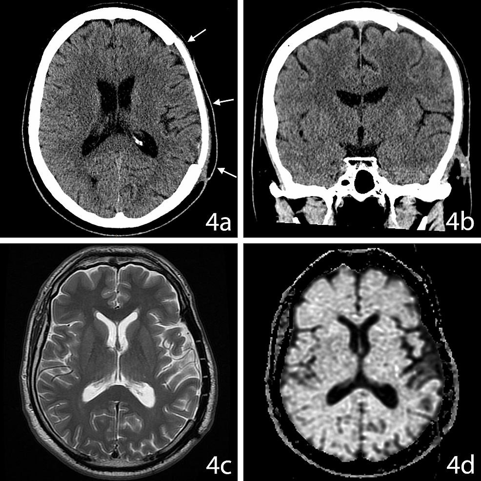 15-Month-Follow-Up-Imaging