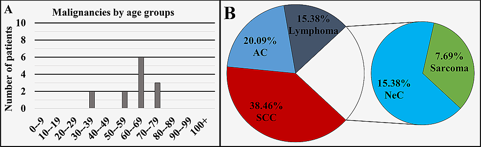 Malignancies-of-the-sinuses-by-age-group-(A)-and-main-histopathological-type-(B).