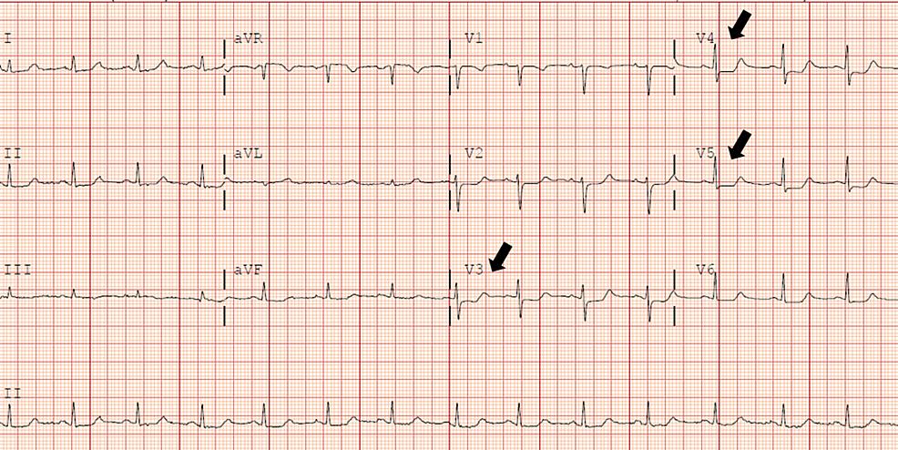 ST-depression-in-lead-V3–V5