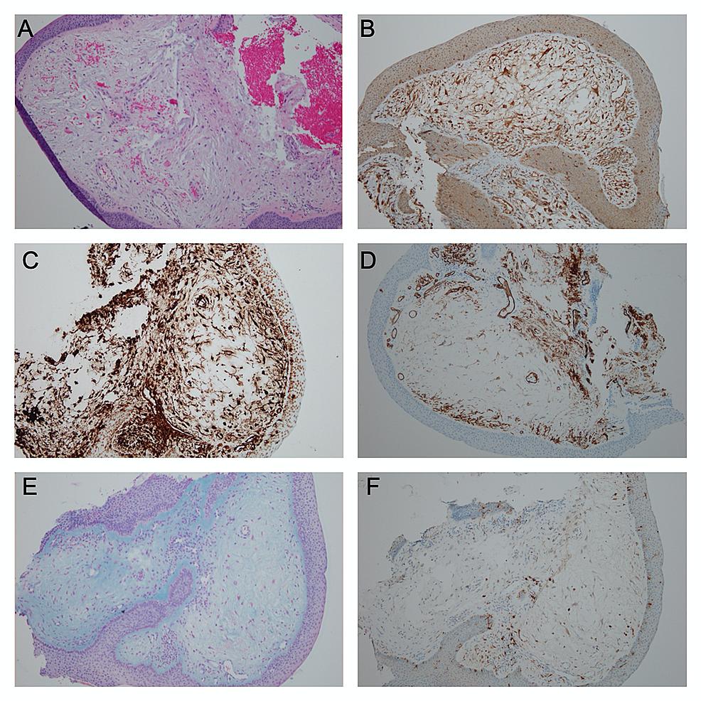 Histopathologic-and-Immunohistochemical-Findings