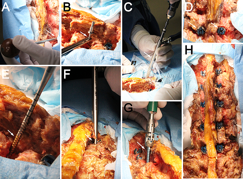Photographs-showing-cadaveric-screw-placement-using-CBT