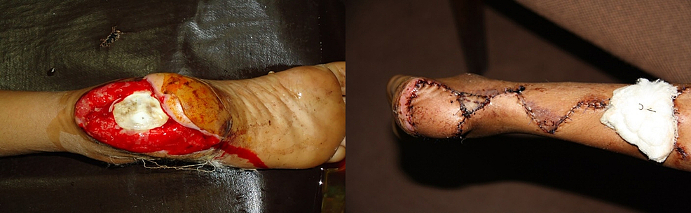 Pre-operative-(left)-and-post-operative-(right)-picture-of-the-foot-of-a-14-year-old-boy-after-wheel-spoke-injury.