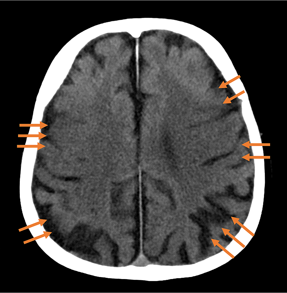 A-plain-computed-tomography-scan-of-the-head-taken-on-the-fourth-day-of-hospitalization