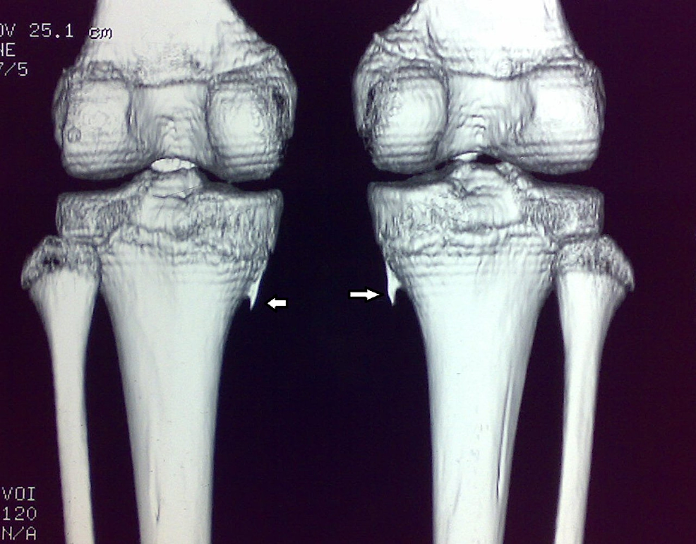 Case-1:-Three-dimensional-(3D)-reconstruction-CT-scan-of-both-knees-