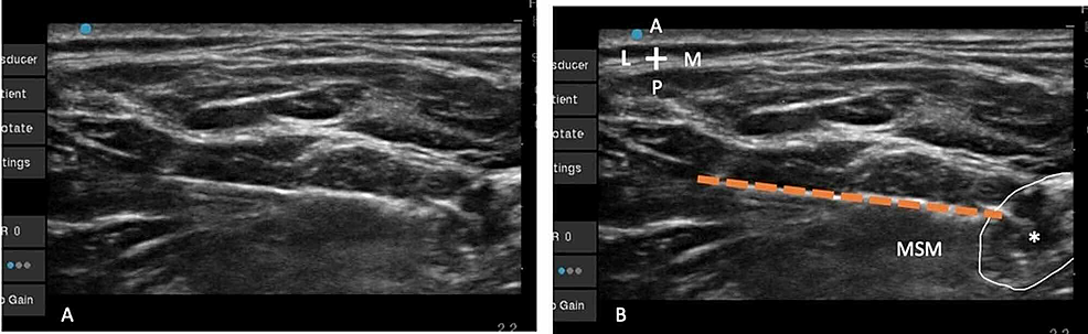 (A)-Unlabeled-view-of-the-Tuohy-needle-approaching-the-upper-trunk.-(B)-The-needle-(interrupted-orange-line)-is-seen-approaching-the-upper-trunk-(*)-in-plane-under-the-deep-cervical-fascia-through-the-MSM-with-its-tip-is-adjacent-to-the-lateral-aspect-of-the-upper-trunk.