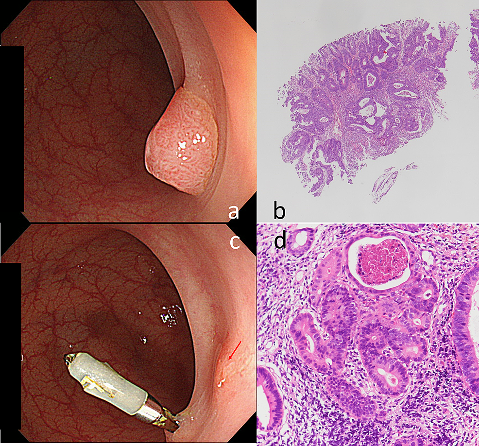 Endoscopic-and-pathological-findings-of-pretreatment-and-recurrent-lesions-