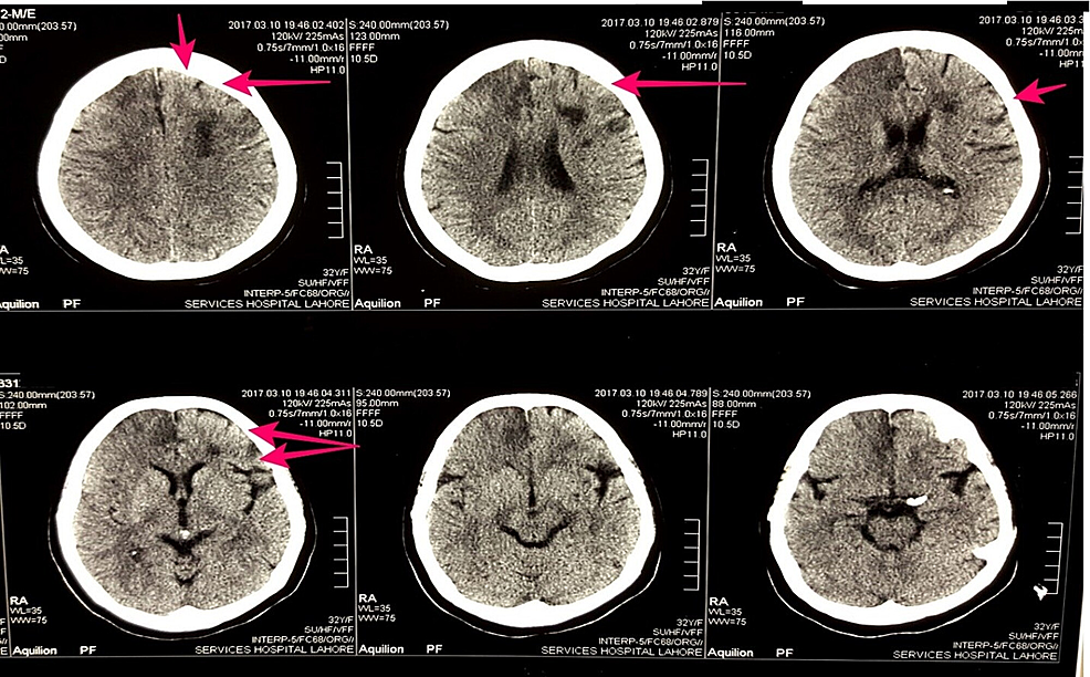 Figure-showing-the-computed-tomography-scan-of-the-patient-without-contrast.-Red-arrows-show-the-hypodense-areas-in-the-right-frontoparietal-region