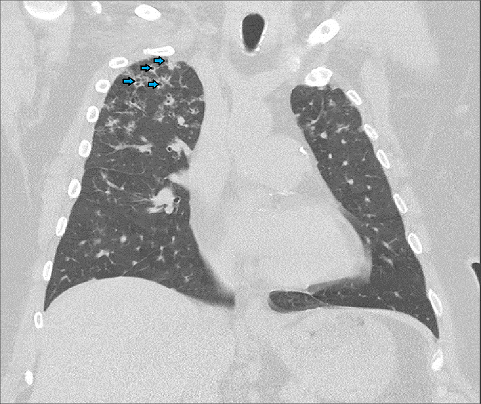 Computed-tomography-of-the-chest-after-three-months-of-antimycobacterial-therapy-showing-development-of-more-cavitary-lesions