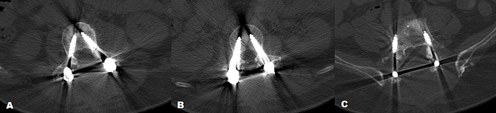 Computed-tomography-(CT)-scan-of-fluoroscopy-guided-hand-placed-screws-(A)-demonstrates-Grade-A-accuracy-for-screw-placement-at-L3-level-(B)-demonstrates-Grade-B-accuracy-at-L2-level.-(C)-Right-screw-demonstrates-Grade-C-placement-and-left-shows-Grade-B-placements-at-level-L5-according-to-Gertzbein-Robbins-classification.