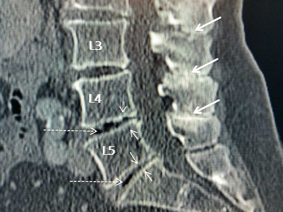 Sagittal-computerized-tomography-(CT)-scan-showing-'kissing'-spinous-processes