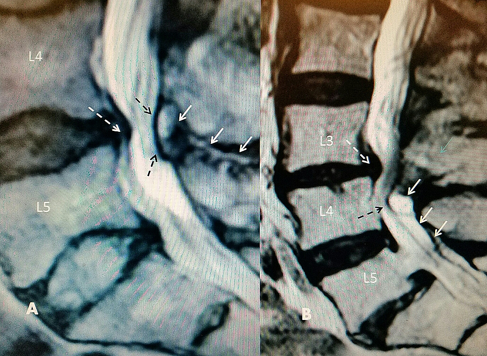 T2-sagittal-magnetic-resonance-imaging-(MRI):-L4-5-disc-degeneration-with-posterior-dorsal-cyst-and-interspinous-hyperintense-fluid