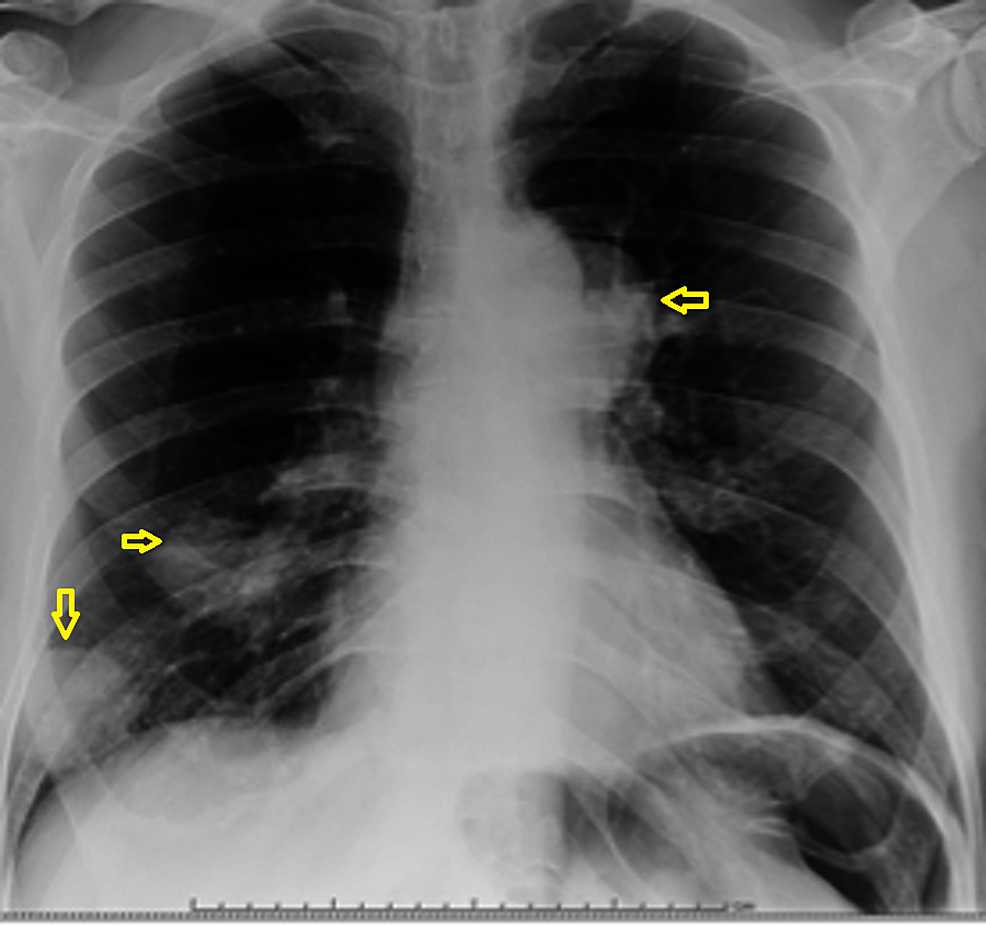 Chest-X-ray-showing-multiple-masses-in-the-lung-(arrows).