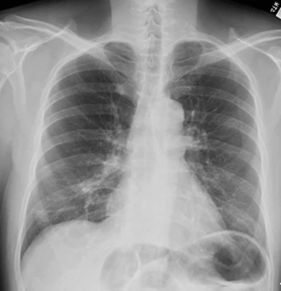 Chest-X-ray-taken-eight-months-later-showed-significant-resolution-of-the-nodules/masses.