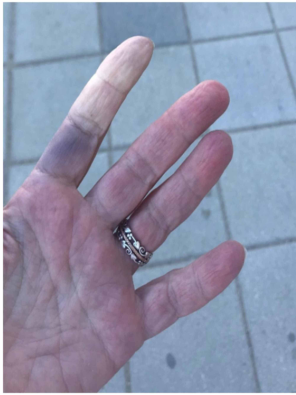 Raynaud's-phenomenon-after-COVID-19-infection
