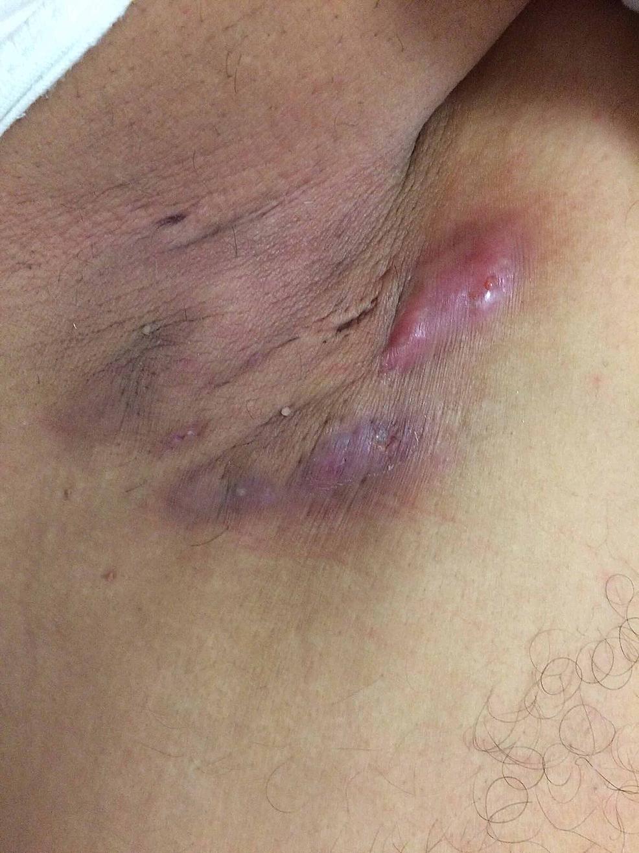 Erythematous-skin-lesions-in-axillary-region