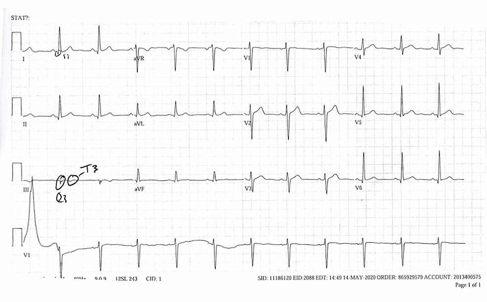 ECG-with-S1Q3T3-pattern-consistent-with-pulmonary-embolism.-